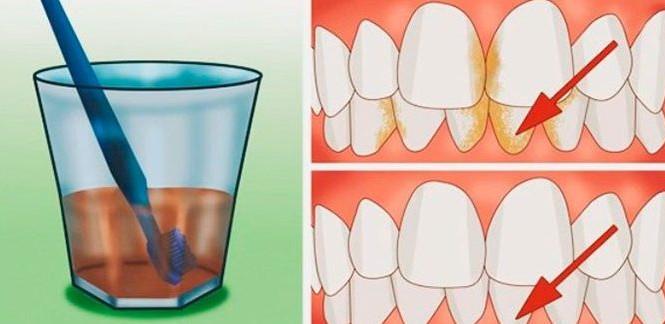 Лучшее средство для удаления зубного камня, отбеливания зубов, от воспаления десен
