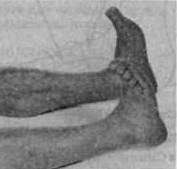 Упражнения для ног, которые помогут предотвратить отечность и улучшить кровообращение. Красота и здоровье в домашних условиях