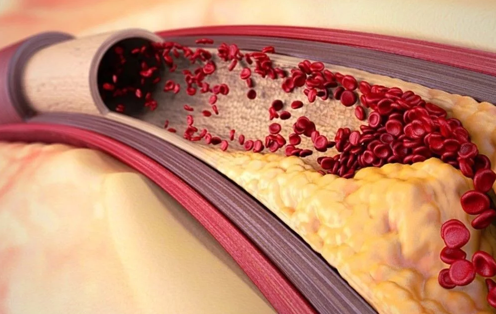 Как очистить сосуды от «плохого» холестерина в домашних условиях. Это самый мощный антиоксидант