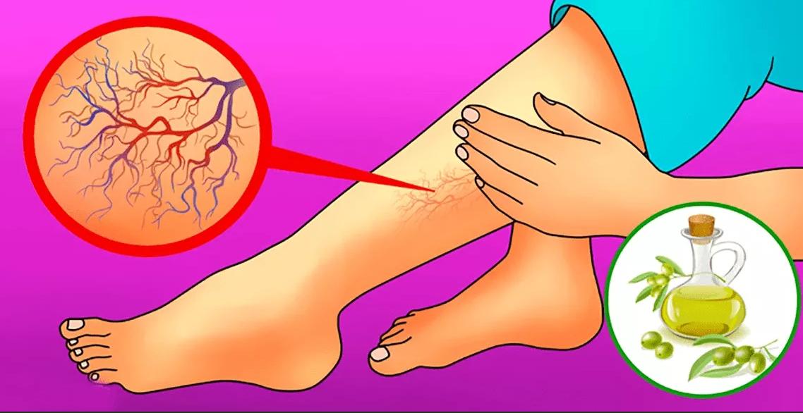 Народное лечение варикозного расширения вен
