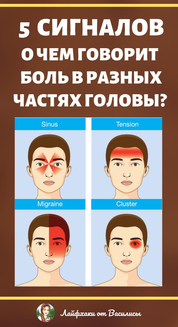 О чем говорит головная боль в разных частях головы. Здоровье
