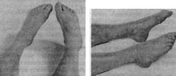 Übungen für die Beine, um Schwellungen vorzubeugen und die Durchblutung zu verbessern. Schönheit und Gesundheit zu Hause
