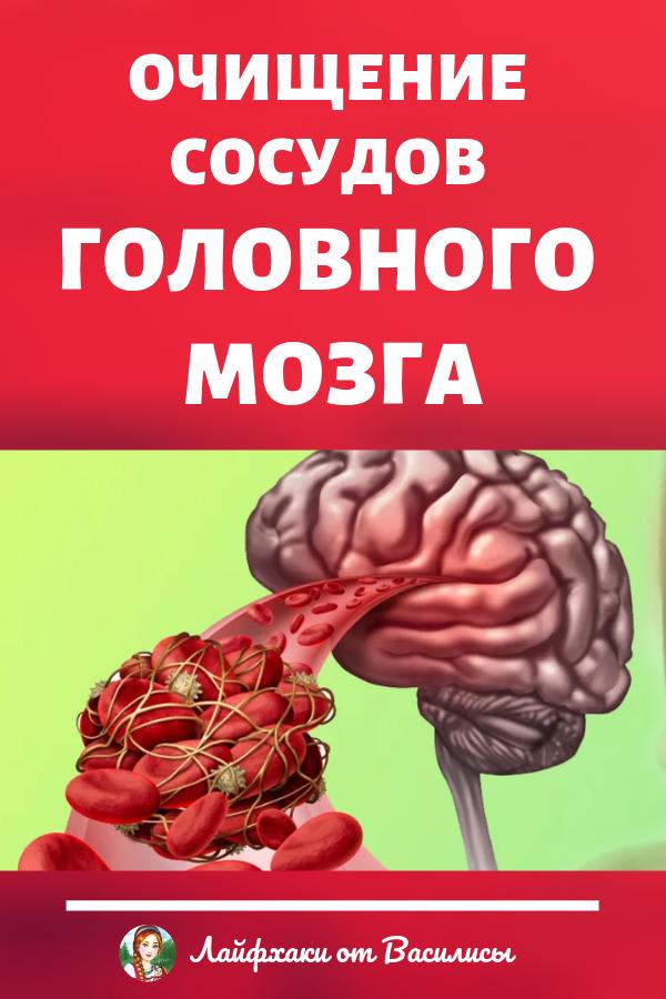 Очищение сосудов головного мозга – улучшение памяти и профилактика инсульта. Здоровье в домашних условиях