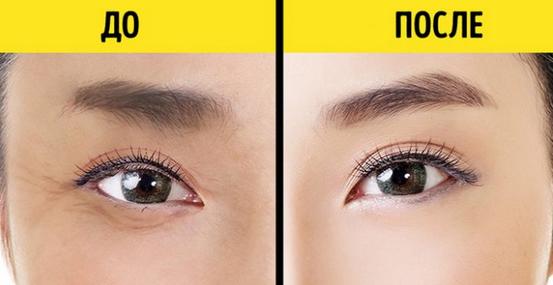 10 Dinge, die deine Augen dir über deine Gesundheit sagen wollen ...