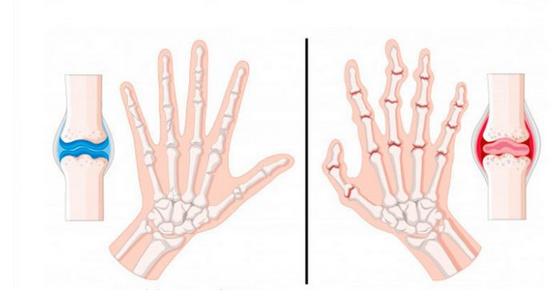 Was tun mit Arthritis und Arthrose: der goldene Rat der orientalischen Medizin …
