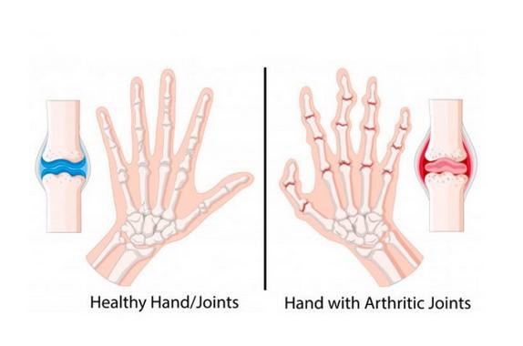 Was tun bei Arthritis und Arthrose: die goldenen Spitzen der orientalischen Medizin ...