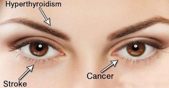 10 Dinge, die deine Augen dir über deine Gesundheit sagen wollen …