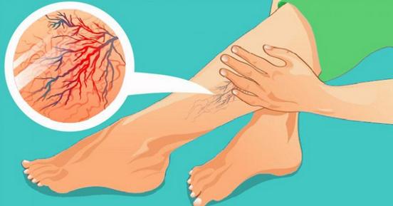 10 großartige Mittel gegen Krampfadern …